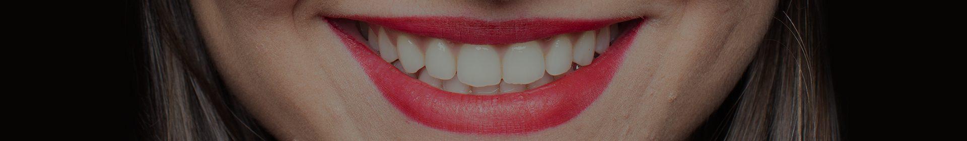 Dental Bonding in Richmond, VT